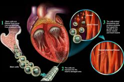 Stem Cell Therapy Heart