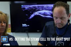 The Top Things You Need to Know about Orthopedic Stem Cell Treatment